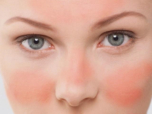 Resultado de imagen de foto piel rosacea